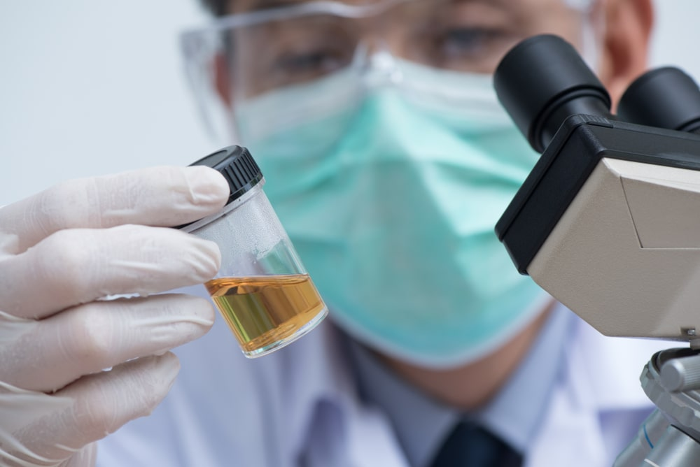 urine drug test